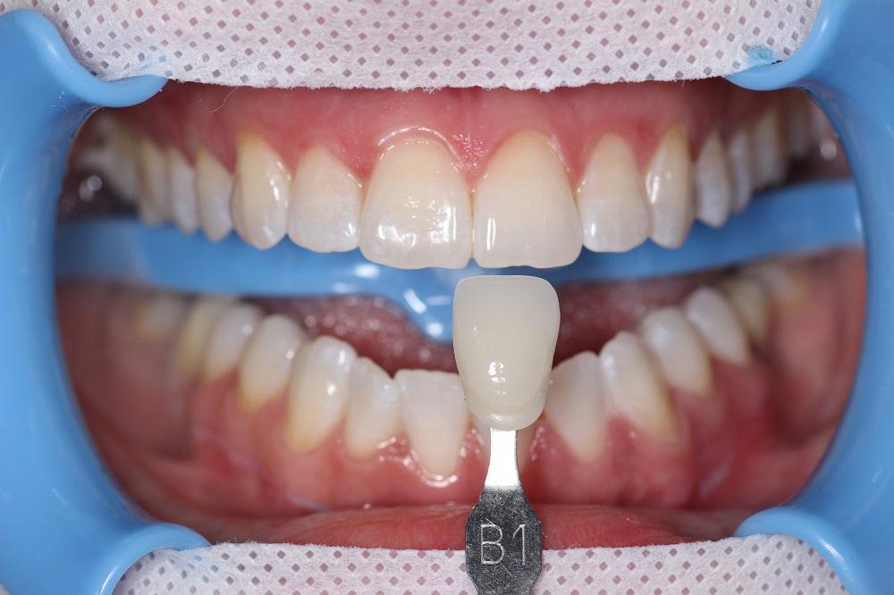 punto-dental-1